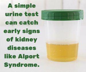 Simple urine test